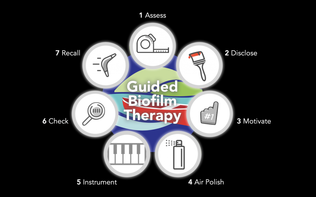 Guided Biofilm Therapy (GBT)